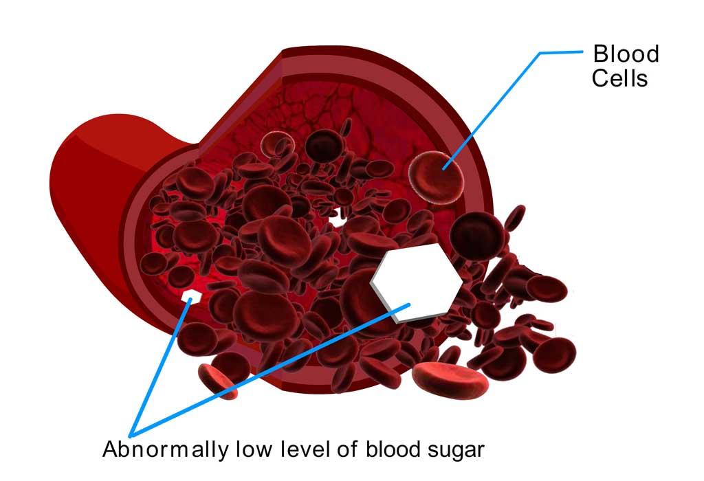 Diabetic-Hypoglycemia-CircleCare