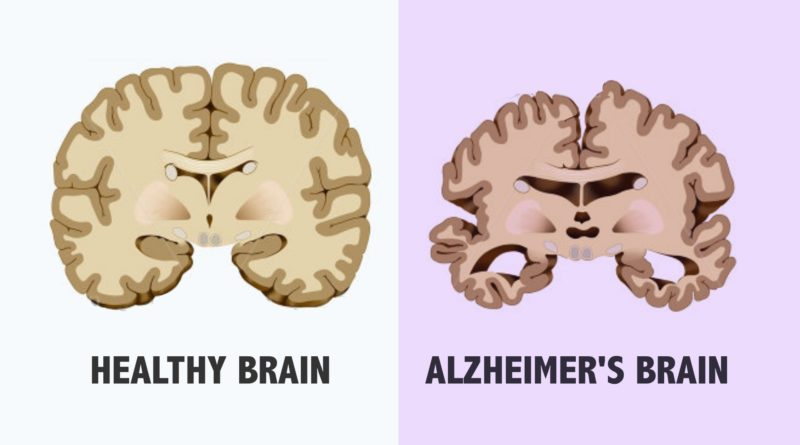 Effect-of-Alzheimer-by-Stages