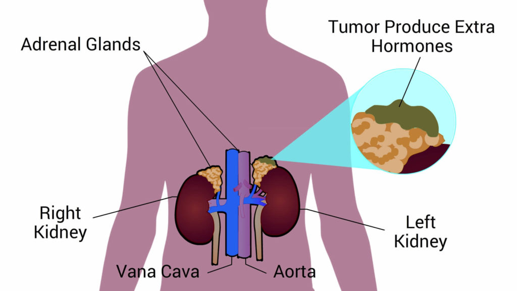 Cause-of-hypertension-Adrenal-gland-tumor-CircleCare