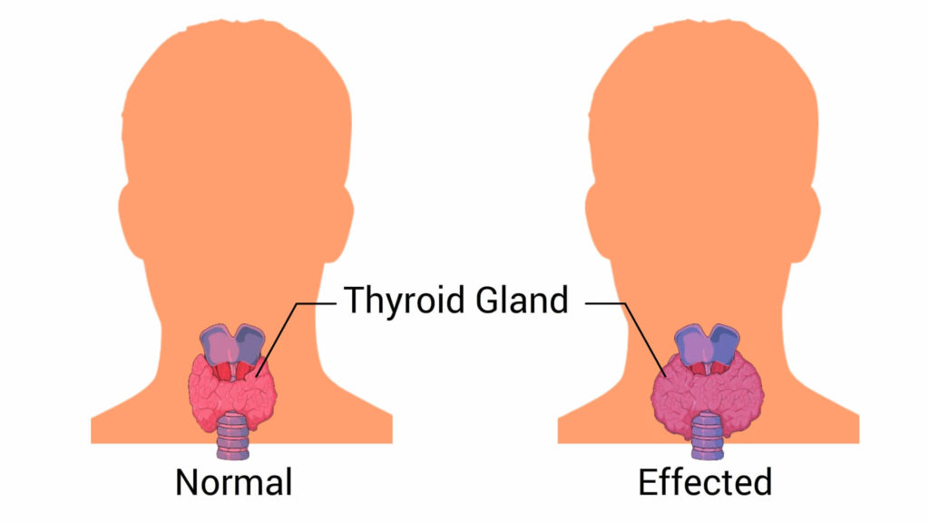 Cause-of-hypertension-thyroid-disease-CircleCare
