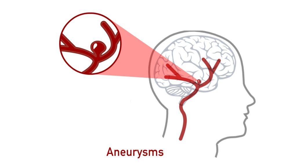 Hypertension-complication-Aneurysm-CircleCare