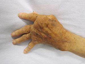 CircleCare-Rheumatoid_Arthritis