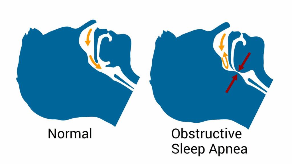 cause-of-hypertension-Obstructive-sleep-apnea-CircleCare