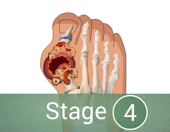 What Are The 4 Stages Of Gout
