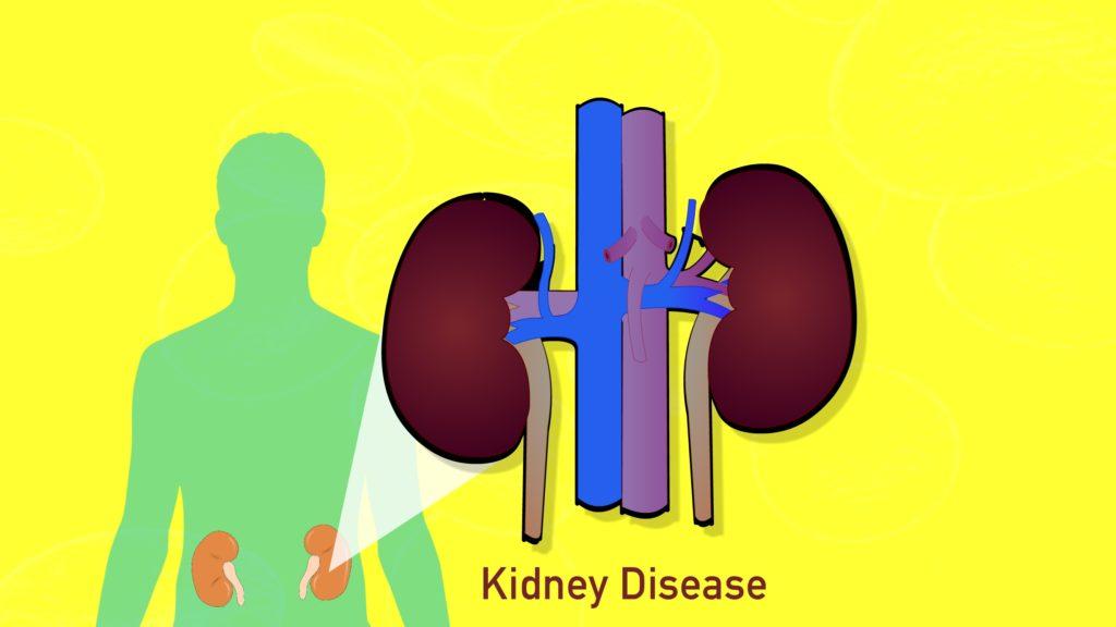 Hypertension-complication-kidney-disease-CircleCare