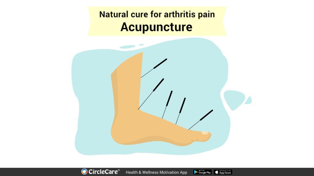 acupuncture-for-arthritis-cure-treatment-pain-management-circlecare