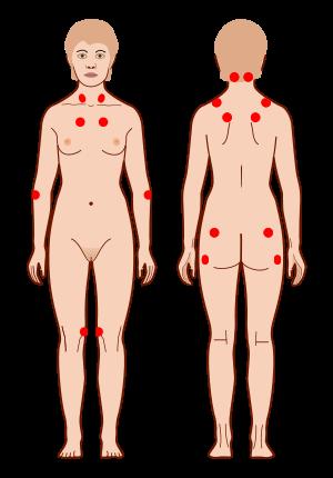 fibromyalgia-CircleCare