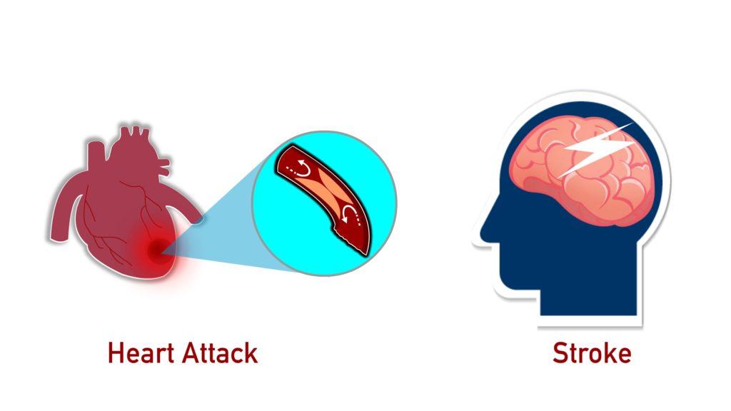 hypertension-risk-of-Heart Attack-Stroke-CircleCare